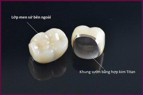 Ưu và nhược điểm trồng răng sứ kim loại *