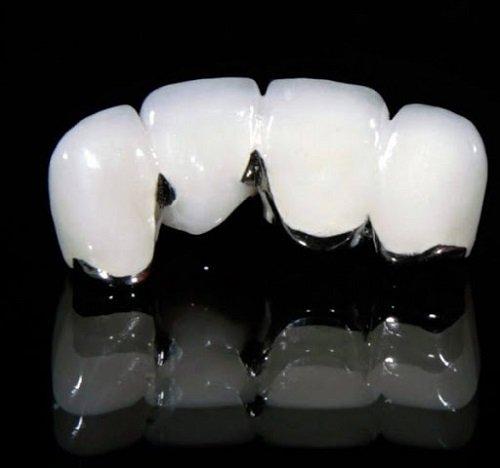 Giải đáp: Có nên trồng răng sứ kim loại không? *