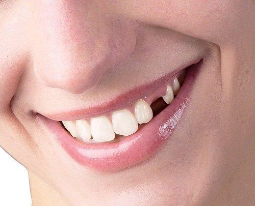 Kỹ thuật trồng răng sứ bạn cần nắm bắt 1
