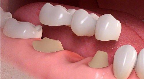 Kỹ thuật trồng răng sứ bạn cần nắm bắt 2