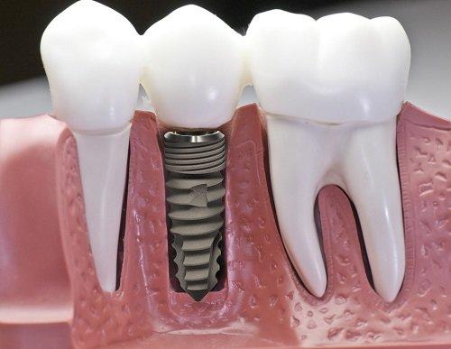 Kỹ thuật trồng răng sứ bạn cần nắm bắt 3