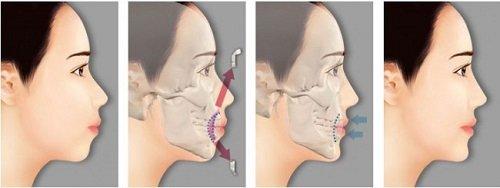 Phẫu thuật hàm hô có đau không? Chuyên gia giải đáp 2