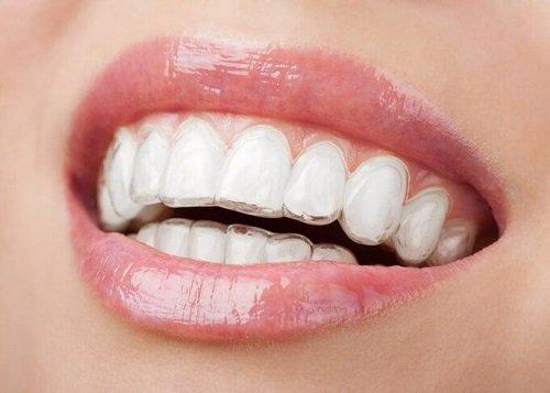 Niềng răng lộn xộn khắc phục tính thẩm mỹ hoàn thiện 3