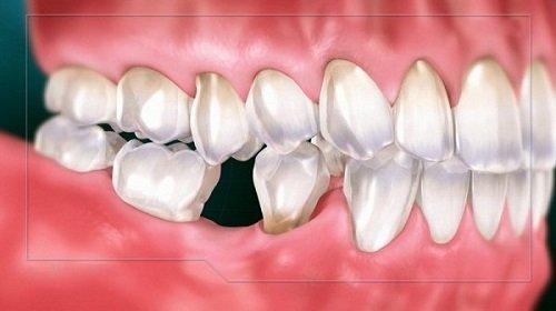 Trồng răng sứ có ảnh hưởng gì không? Tìm hiểu thông tin 1