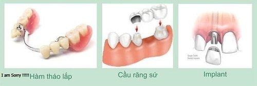 Trồng răng sứ có ảnh hưởng gì không? Tìm hiểu thông tin 2