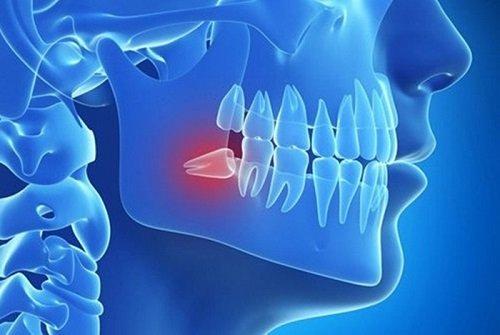 Đau răng khôn dẫn đến đau tai - Cách khắc phục tình trạng 1