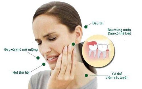 Đau răng khôn dẫn đến đau tai - Cách khắc phục tình trạng 2