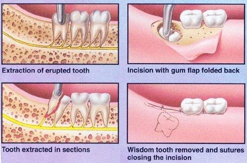 Đau răng khôn dẫn đến đau tai - Cách khắc phục tình trạng 3