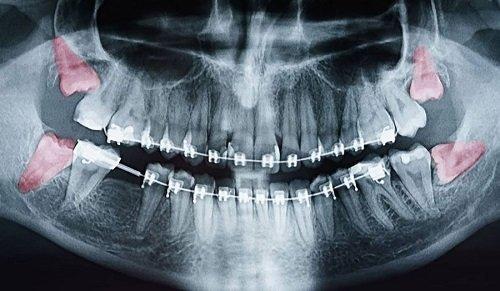 Răng khôn hàm trên bị sâu - Xử lý hiệu quả dứt điểm 2