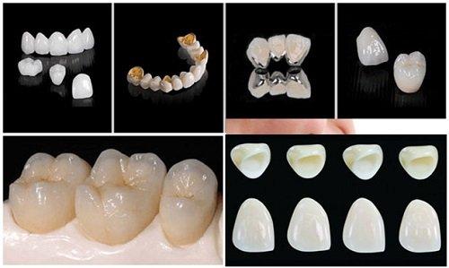 Trồng răng sứ có bền không? Nên chọn loại nào? 2