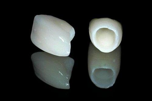 Trồng răng sứ có bền không? Nên chọn loại nào? 3