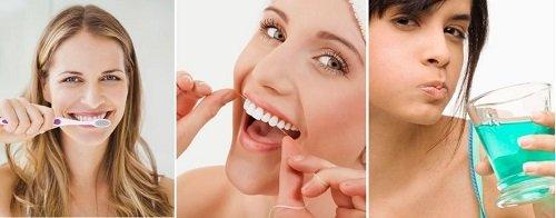 Trồng răng sứ có bền không? Nên chọn loại nào? 4