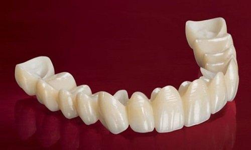 Trồng răng sứ không mài răng - Chuyên gia giải đáp 1