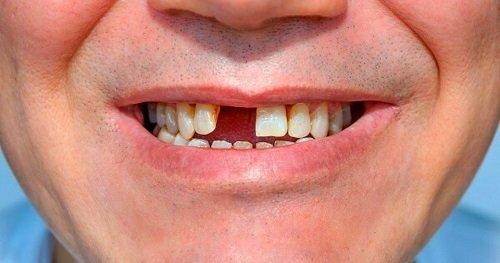 Trồng răng sứ không mài răng - Chuyên gia giải đáp 2