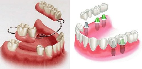 Trồng răng sứ không mài răng - Chuyên gia giải đáp 3