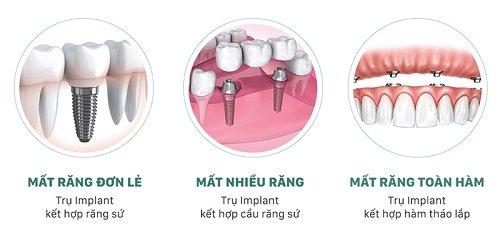 Trồng răng sứ không mài răng - Chuyên gia giải đáp 4