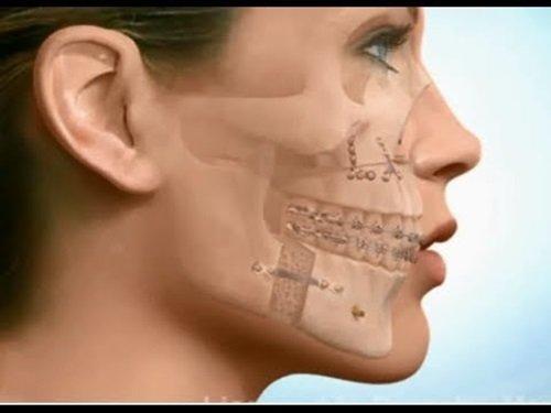 Niềng răng có bị hóp má không? Tham khảo thông tin 1