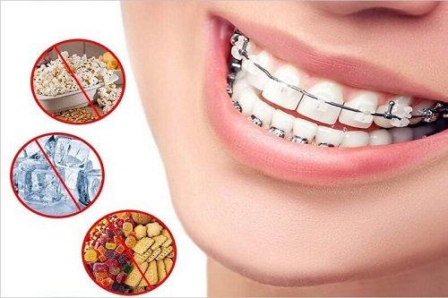 Niềng răng có bị hóp má không? Tham khảo thông tin 3