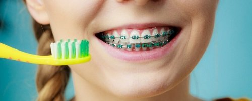 Niềng răng dùng bàn chải gì? Các loại bàn chải cần tham khảo 2