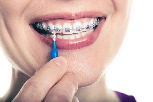 Niềng răng dùng bàn chải gì? Các loại bàn chải cần tham khảo 3