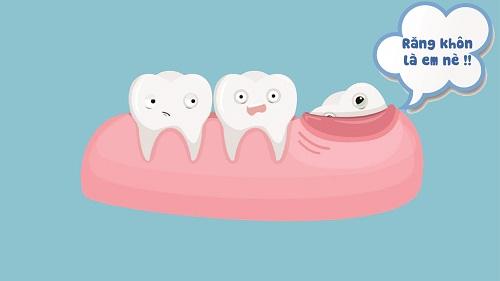Răng khôn hàm trên mọc ngầm có nên nhổ? 2