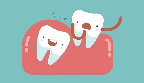 Răng khôn hàm trên mọc ngầm có nên nhổ? 3