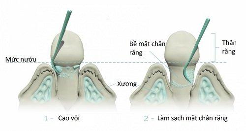 Cạo vôi răng sóng siêu âm - An toàn - Hiệu quả 1