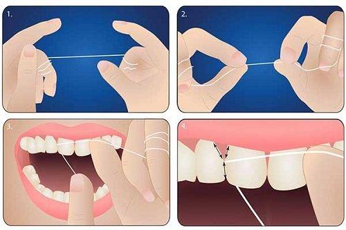 Cạo vôi răng sóng siêu âm - An toàn - Hiệu quả 3