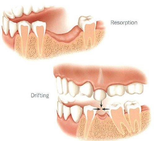 Trồng răng giả có đau không? Nên chọn kỹ thuật nào? 1